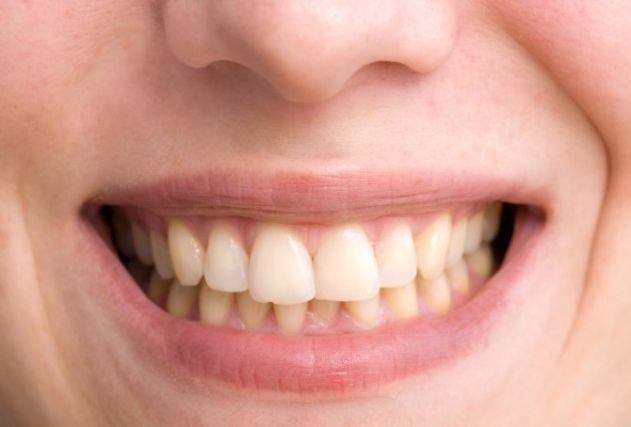 احذر 10 أسباب تؤدي الى اصفرار الأسنان
